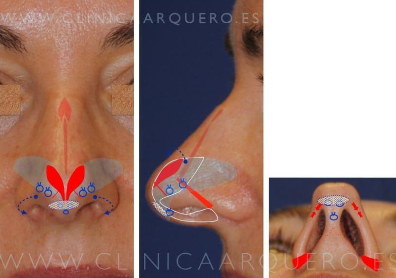 Tratamiento rinomegalia
