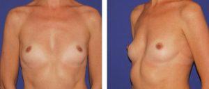 Mamas con hipotrofia intensa, sin surco submamario, leve asimetría de tamaño y pectum excavatum moderado