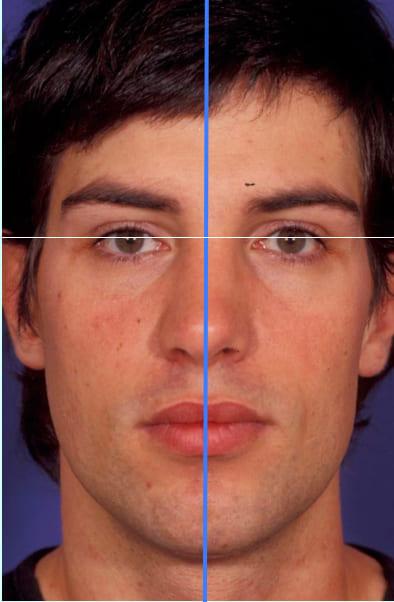 Línea interpupilar y línea media de la cara