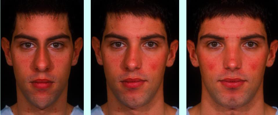 ESTUDIO DE LA SIMETRÍA FACIAL: Composición de tres rostros a partir de uno solo