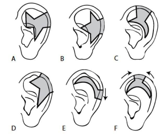 Modelos de reducción de la circunferencia auricular (Tanzer)