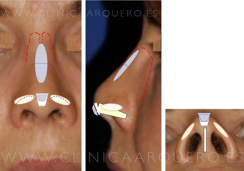 Tratamiento nariz corta