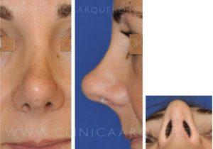 Rinoplastia secundaria - nariz a tensión