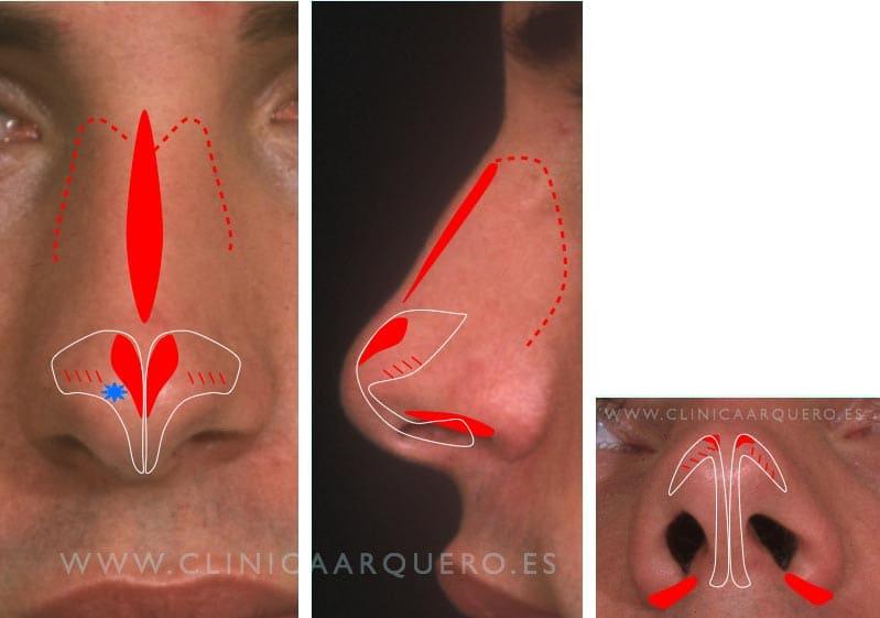 Tratamiento de la nariz