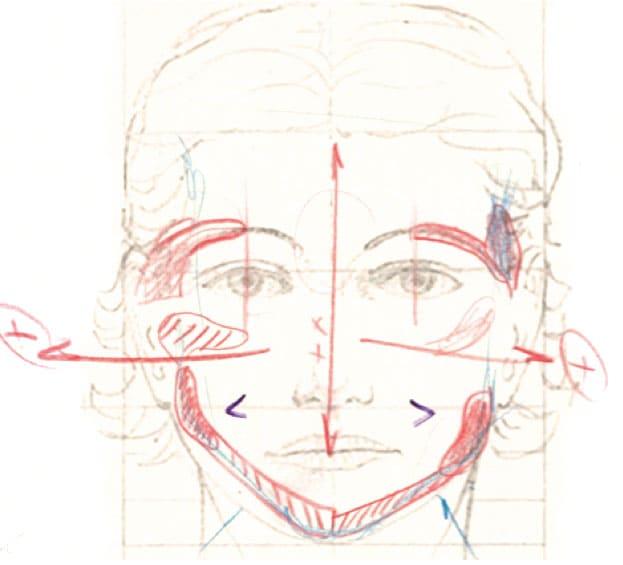 Prótesis mentomandibular diagnostico