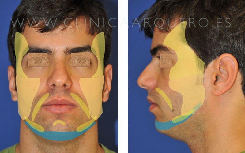 Prótesis mentomandibular tratamiento
