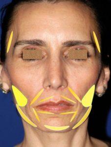 Lipoinjerto facial femenino tratamiento