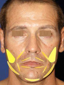 Lipoinjerto facial masculino tratamiento