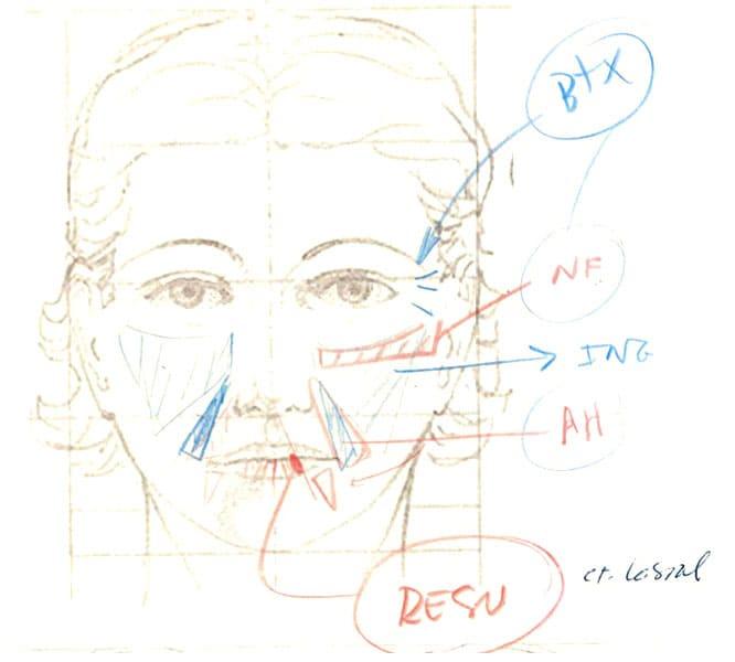 Lipoinjerto facial masculino diagnostico