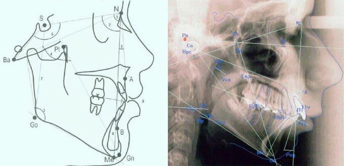 Telerradiografía para el estudio Cefalométrico
