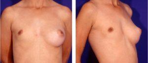 Atrofia de la glándula mamaria