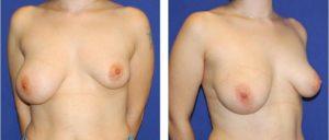 Hipertrofia de la glándula mamaria der. e Hipotrofia con ptosis de la mama izq.