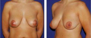 Hipertrofia de la mama der. y Ptosis de la izquierda.