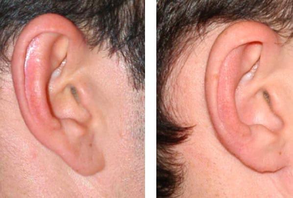 Corrección de abano, Reducción del pabellón auricular