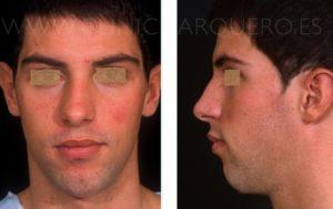 Modelado facial - Prótesis de mentón secundaria