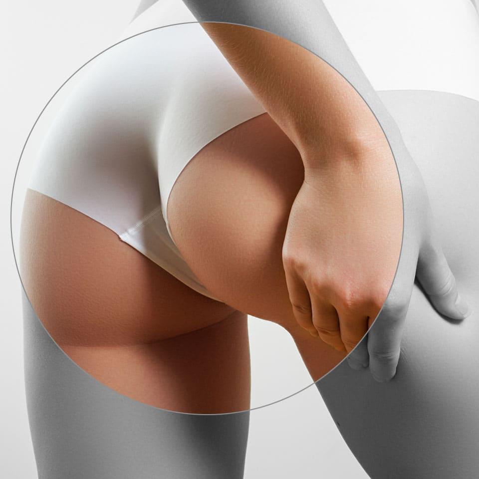 Prótesis aumento de glúteos