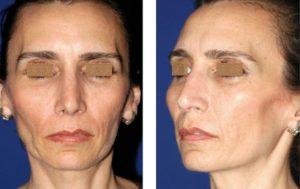 Lipoinjerto facial femenino