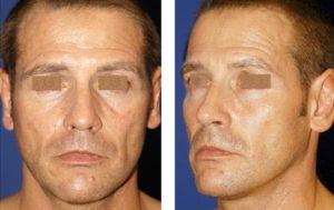 Lipoinjerto facial masculino