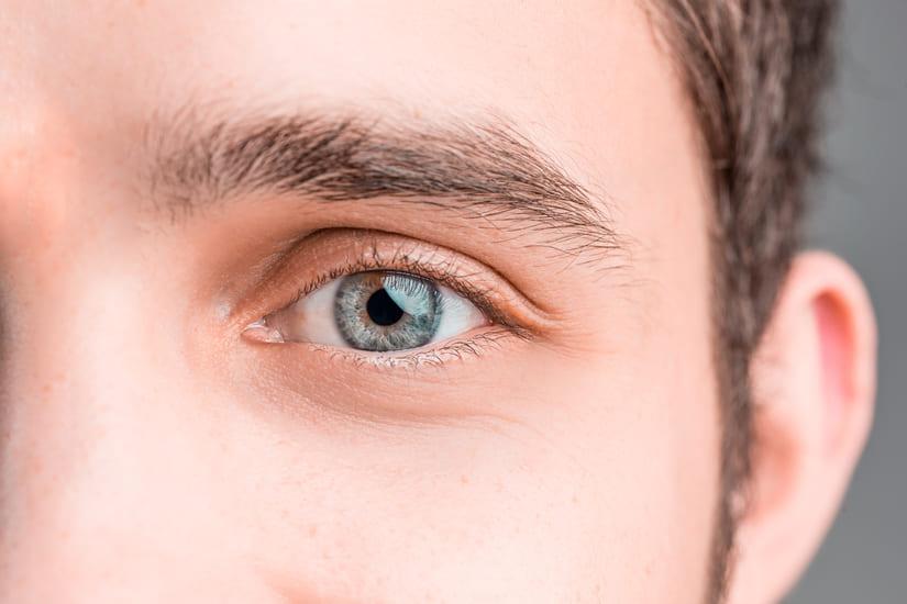 Blefarocalasia cirugía del párpado superior en hombres