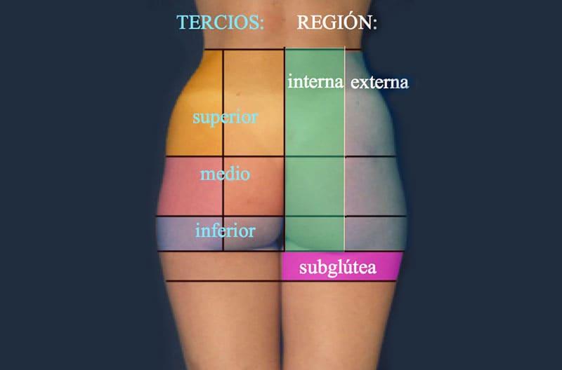 Zonas en que se dividen los glúteos