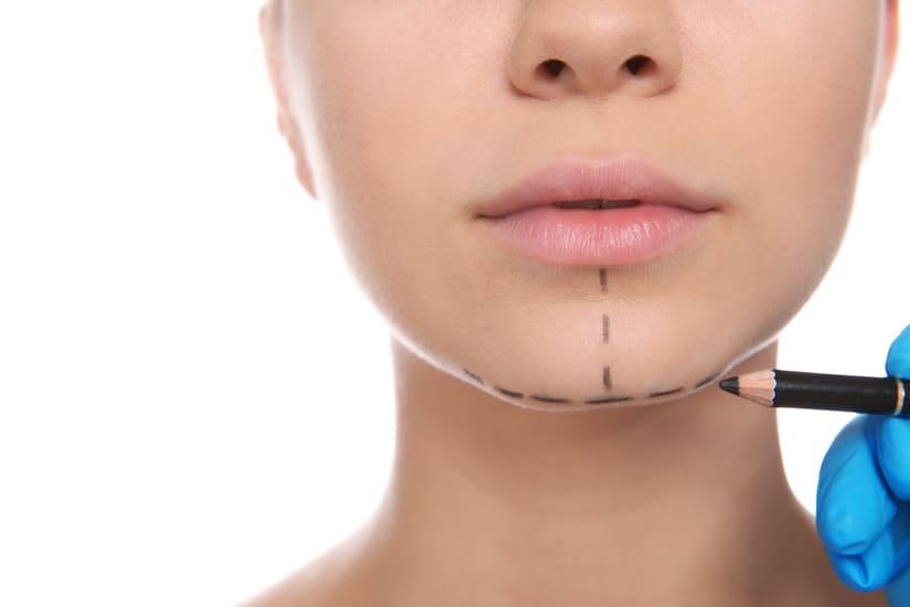 Cirugía del mentón en perfiloplastia