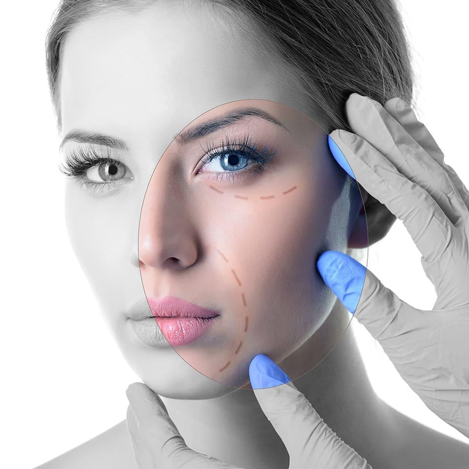 Relleno Facial, Relleno de Labios, Implantes Faciales, Relleno de Barbilla