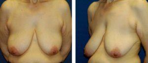 mamas con ptosis muy importante