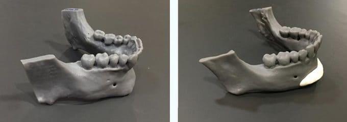EL TAC CON RECONTRUCCIÓN EN 3D nos facilita la impresión en 3D de la mandíbula donde podemos apreciar sus irregularidades y asimetrías y proyectar los implantes de mentón y mandíbula de manera personalizada.
