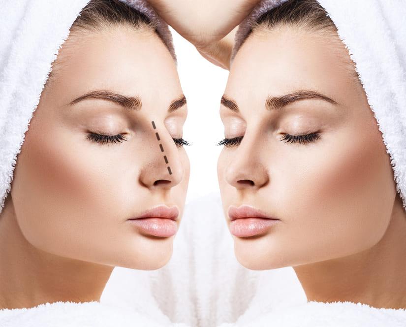 Mejora del perfil del rostro con rinoplastia combinada