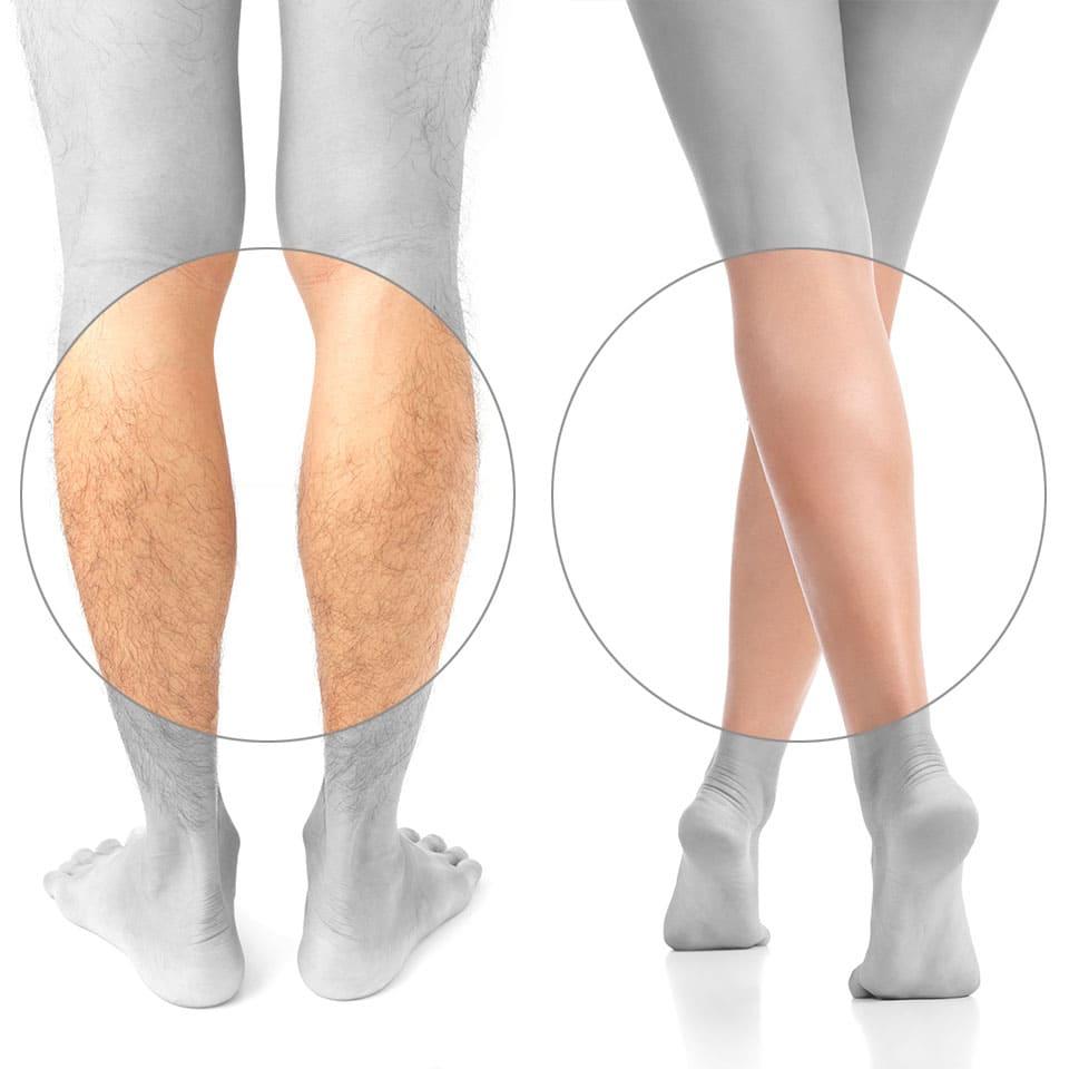 protesis-de-gemelos