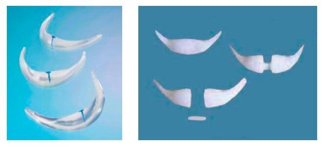 Implantes de mentón, 1. silicona solida, 2. Porex