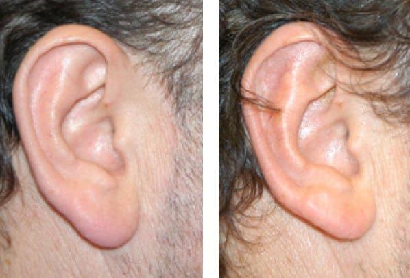 Dr. Arquero: reducción del lóbulo.