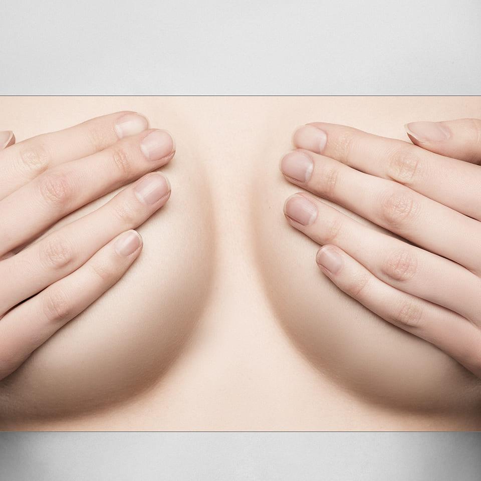 Mamoplastia de Reduccion, Reduccion Mamaria, Reduccion de Mamas, Reduccion de Pecho