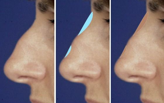 Simulación de cómo la rinomodelación es útil para tratar un dorso cóncavo, una giba o cifosis leve.