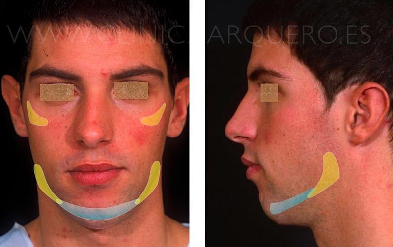 Modelado facial - Prótesis de mentón malposicionada